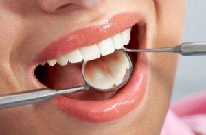 в лечении зубов